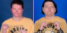 Ärzte schenken Mann ohne Gesicht ein völlig neues Leben