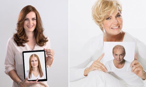 Vor allem für Damen, die nach einer Krebserkrankung unter Haarverlust leiden, war der Lockdown eine große Belastung.