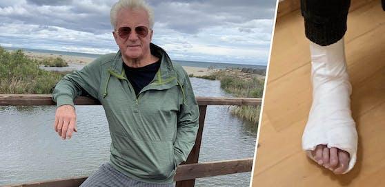 Hans P. (73) muss nun Gips tragen.