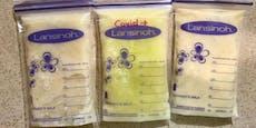 Muttermilch verfärbte sich durch Corona grün