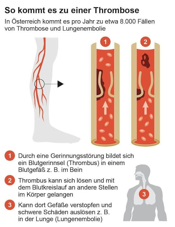 Schematische Darstellung eines Blutgerinnsels (Thrombus)