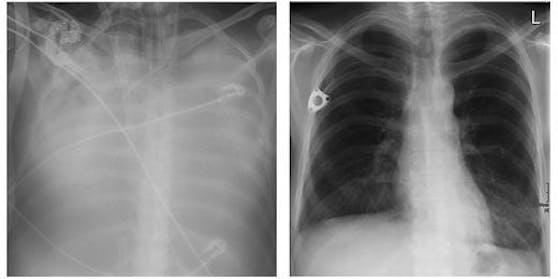 Sabines Lunge mit Covid-19 (l.); ihre neue Lunge (r.)