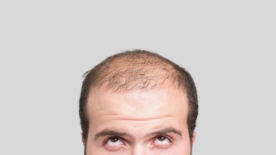 Rund ein Drittel aller Männer über 30 Jahren leiden unter Glatzenbildung, der Anteil steigt mit zunehmendem Alter.