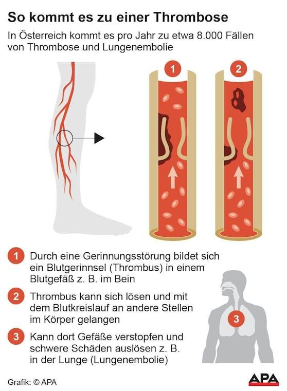 So kommt es zu einer Thrombose.