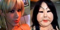 Beauty-OP misslungen - jetzt sammelt 30-Jährige Spenden