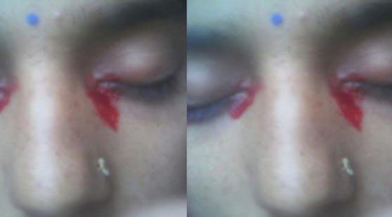 Die 25-jährige Inderin leidet unterHämolakrie.