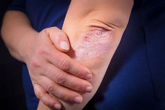 Auch mit einer Psoriasis-Erkrankung wird die Corona-Impfung empfohlen.
