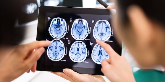 Eine mysteriöse Gehirnerkrankung ist in der kanadischen Provinz New Brunswick aufgetreten.