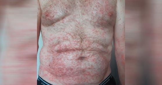 Sepp Sennhauser bekam nach dem Kontakt mit der Giftraupe am ganzen Körper heftige Pusteln.