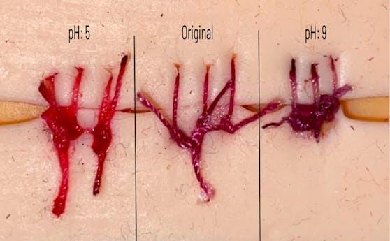Nach fünf Minuten unter einem infektionsähnlichen pH-Wert ändert sich die Farbe der Wundnähte aus Roten Rüben von leuchtend rot auf dunkelviolett.