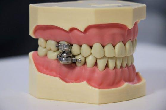 """""""DentalSlim Diet Control"""""""