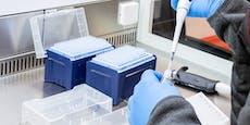 82 von 100 Corona-Fällen bereits durch Delta-Mutation