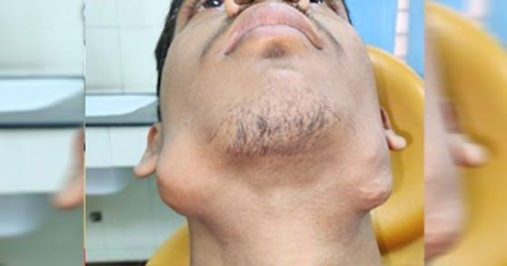 Nitish Kumar hatte 82 Zähne zu viel in seinem Kiefer.