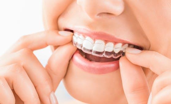 Auch unsichtbare Zahnschienen brauchen mehr als einen Klick im Internet. Drei Kieferorthopädinnen klären auf.